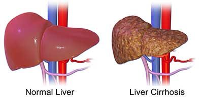 Maintaining a Healthy Liver